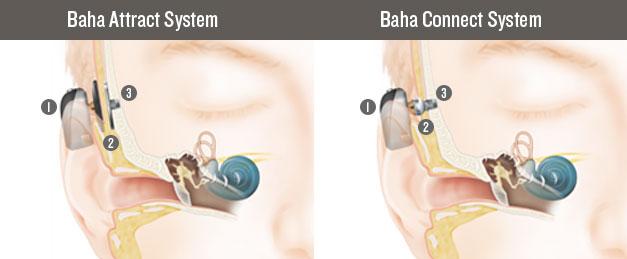 Grafik Implantierbare Hörgeräte